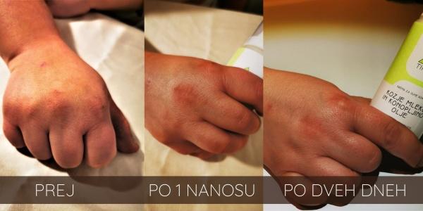 Suha koža na rokah – vzroki in rešitve