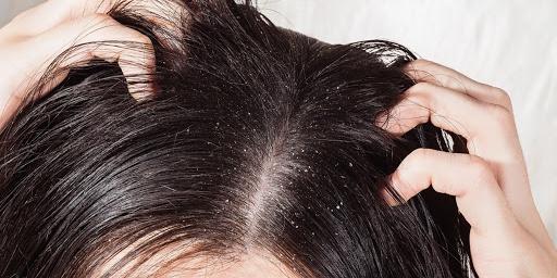 Rešitve za odpravo mastnih las in prhljaja