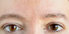 Naravna nega suhe kože na obrazu